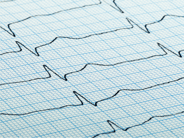How Tachycardia Affects Healthy People with Anxiety
