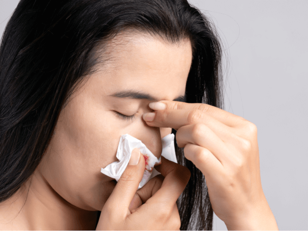 Bleeding Nose: An Unusual Anxiety Symptom