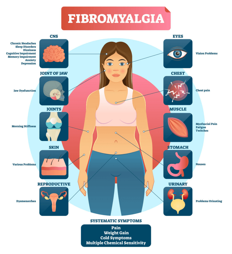 How Are Anxiety and Fibromyalgia Connected?